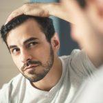 Łysienie u mężczyzn – sposoby na wypadanie włosów